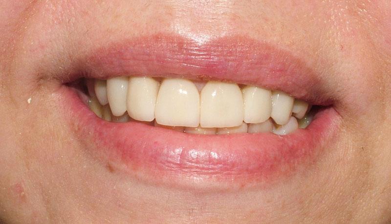 Oral de tres al tiempo - 5 5